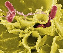 salmonella invading cultured human cells